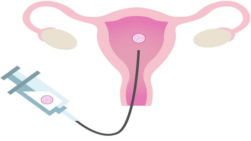 انتقال جنین به رحم مارد در مرحله بلاستوسیت