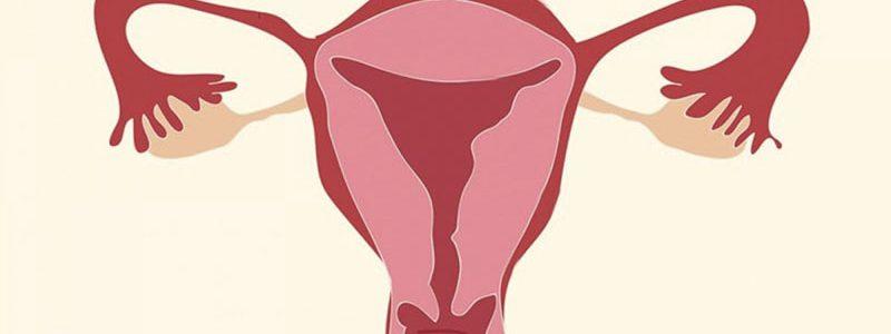 درمان سرویکس کوتاه در بارداری
