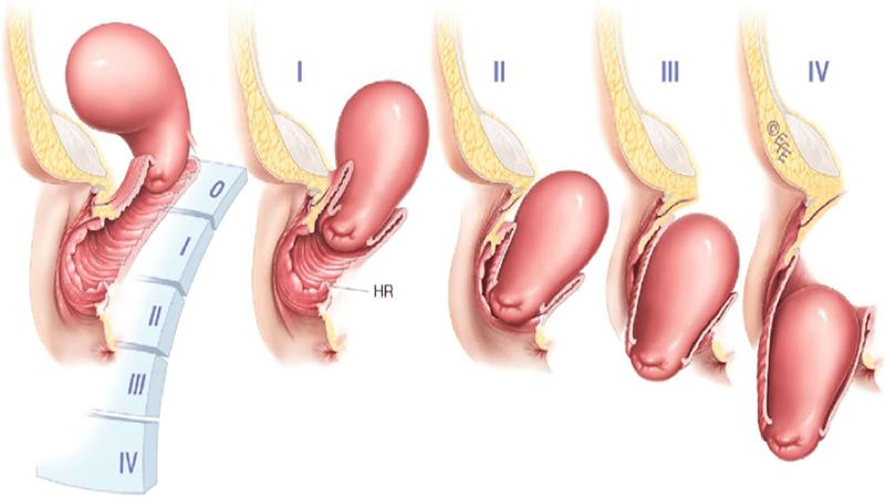 مراحل پیشروی افتادگی رحم ( پرولاپس رحم )