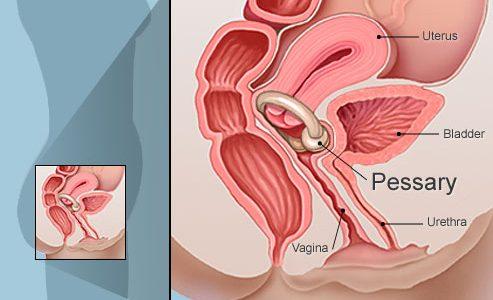 سیستوسل یا افتادگی مثانه چیست؟